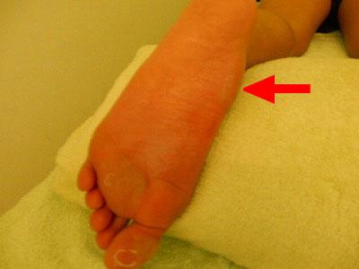 ランナーに多い舟状骨の痛み