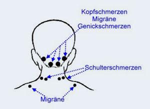 whirlpool bei migräne