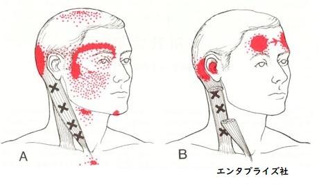 頭痛のトリガーポイント