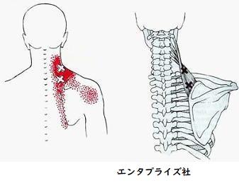 肩のトリガーポイント