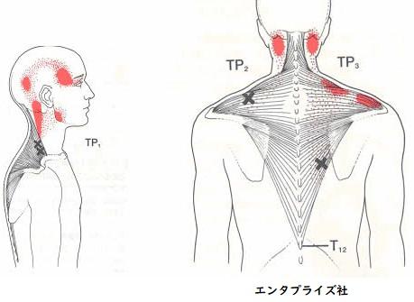 肩や首のトリガーポイント