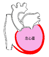拡張型心筋症