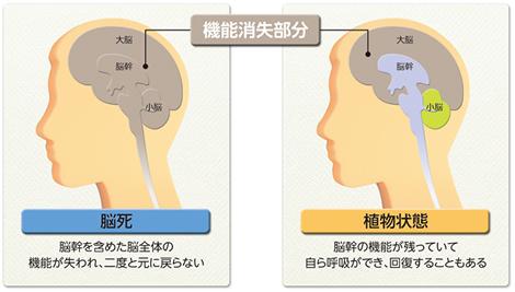 脳死と植物状態の違い