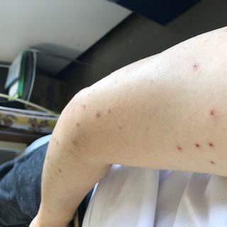 腕にできた湿疹