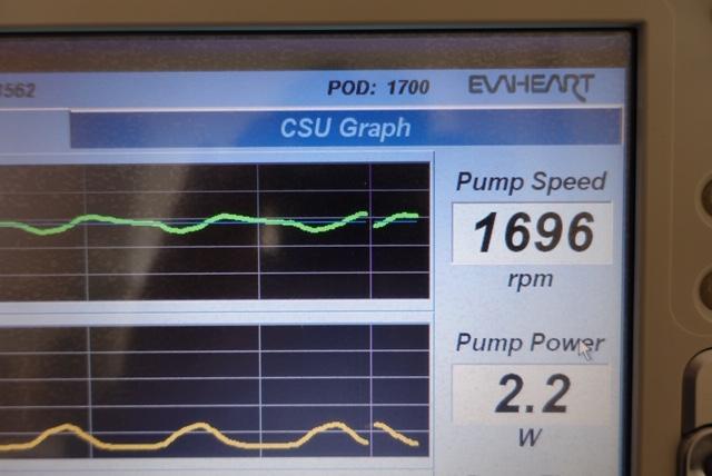 EVAHEARTの外部モニターに表示されたPOD:1700