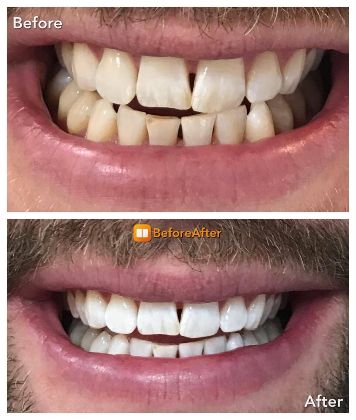 Teeth Whitening / Teeth cleaning with B24