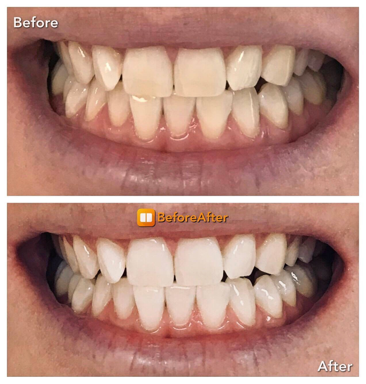 Teeth Whitening / Teeth cleaning with B24