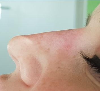 nach Injektion von ca. 0,2 ml eines Spezialfillers aus Calcium-Hydroxylapatit, virtuelle Verkleinerung auch der Nasenspitze durch zusätzliche Injektion in den Nasensteg