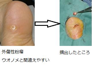 外傷性粉瘤