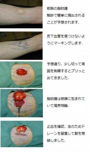 腕の脂肪腫
