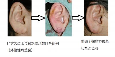 外傷性耳垂裂
