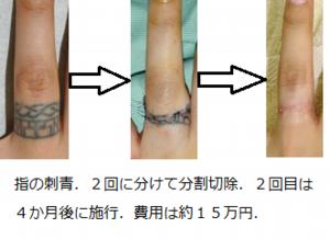 指の刺青切除