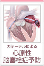 カテーテルによる心原性脳塞栓症予防