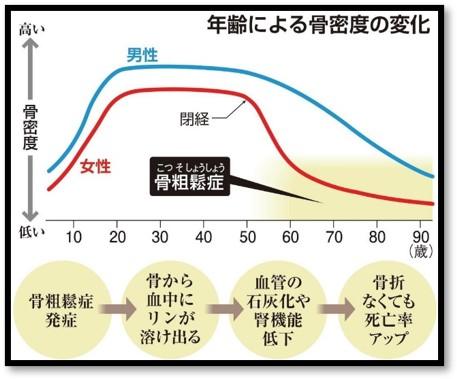 年齢による骨密度の変化