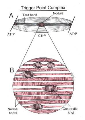 Schema des Triggerpunkt Komplexes