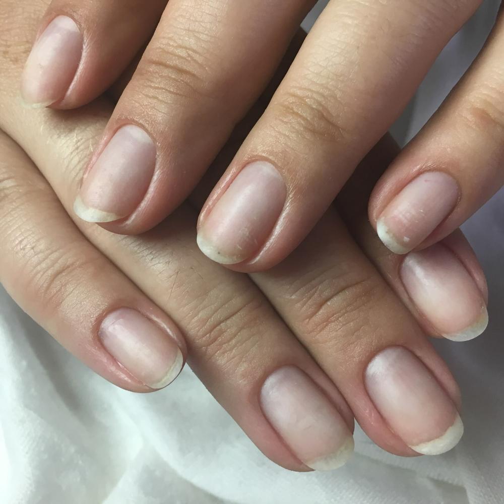 Geschädigte Nägel nach 1x IBX Behandlung
