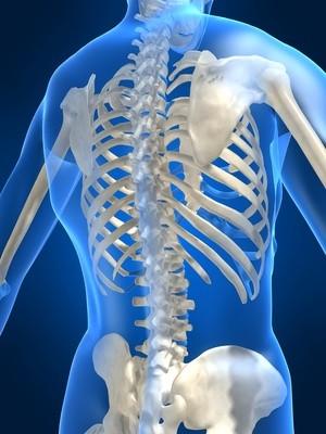 Osteoporosis - osseous tissue