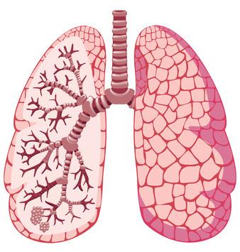 Enfermedades de pulmones