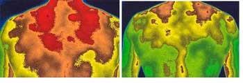 Thermographie von und nach 5 Minuten Behandlung mit IceWave!