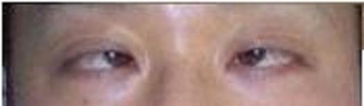 レーシックにより眼位に異常を発症した患者(目に意識を集中していない時目が内側にキョロっと寄ってしまう内斜という症状を併発)。術後生じた複視と眼痛をクリニックに訴えると、担当医は「(患者の訴えは)私には分かりません。むしろ見えるようになって喜べるはずですが?」と返答した。