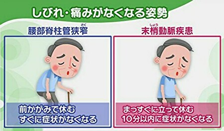 間欠性跛行の違いの図