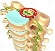 慢性腰痛から脊柱管狭窄症への画像