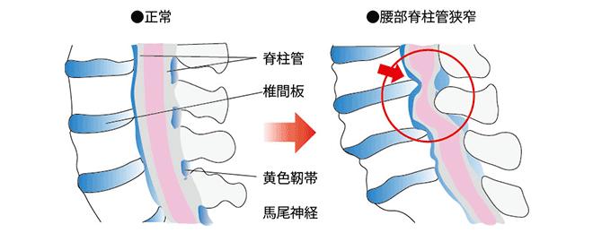 腰部脊柱管狭窄症のイラスト