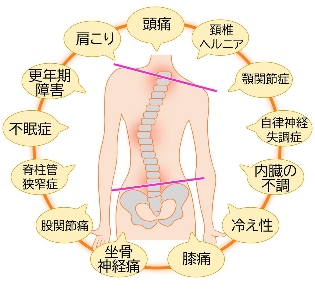 お体の歪みをセルフチェックする方法