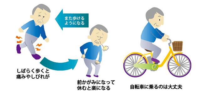 脊柱管狭窄症における間欠性跛行と自転車走行時の比較図