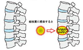脊椎カリエス絵図