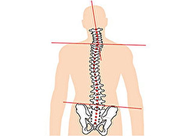 腰痛と身体の歪み②