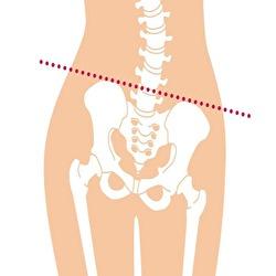 腰痛と身体の歪み①