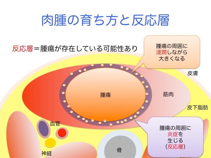 骨軟部肉腫は、細胞が増えた固まりとして体内に存在。この固まりの周りでは、腫瘍の細胞が周囲に染み込むように拡がりながら育つ。腫瘍は急速に大きくなり、腫瘍の周りに出血やむくみなどの体液の異常を生じる。また、腫瘍が浸潤に反応して、リンパ球や組織球と呼ばれる身体を外敵から守ったり、異物を除去する働きがある細胞が腫瘍の周りに集まってくる。このような身体の反応を炎症と呼び、肉腫の周りの炎症が生じた部分を反応層と呼ぶ。反応層には腫瘍が存在している可能性あり。