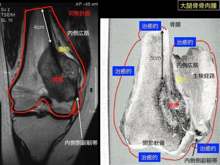 左はふとももの骨(大腿骨)の骨肉腫の患者さんのMRI。黒っぽく変色している部分が腫瘍。骨の中で育った腫瘍が骨から外側に出て行っている状態が観察できる。このMRIをもとに、広範切除になるように腫瘍を正常な骨、脂肪、筋肉などで包んで切り取るように計画しました。右は実際に切り取った腫瘍部分を割って見えるようにしたもので、腫瘍の大きさや位置がMRIと全く同じなのが分かる。MRIの導入によって、ミリメートル単位で腫瘍の大きさを知ることができるようになり、精密な手術を計画して、遂行することが可能となった。