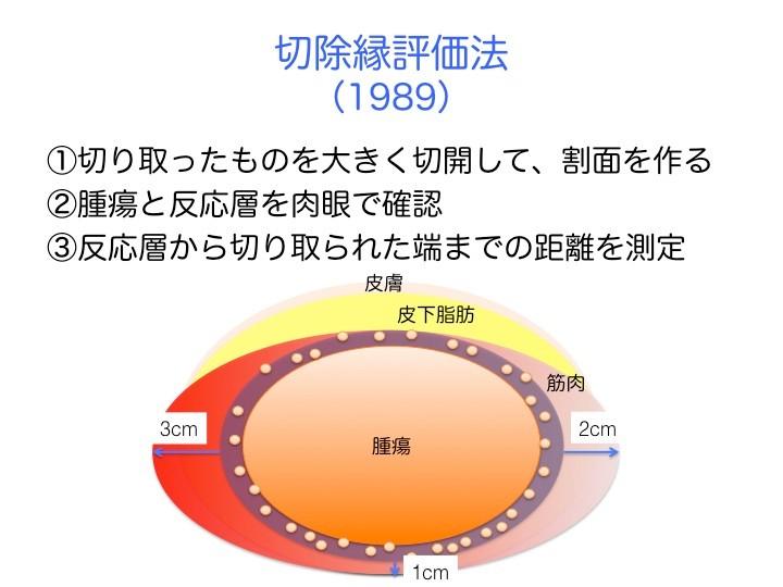 切除縁評価法とは、切除縁を日本全国共通の計り方で記録して、比較できるようにする目的で決められた。具体的には、腫瘍を含む切り取ったものを大きく切開して、断面を作る。その後、腫瘍とその周りにある反応層を肉眼で確認。反応層からメスで切り取られた端までの距離を定規で測定して、センチメートル単位で記録。この図で言うと、左端は切除縁が3cm、右端は2cm、腫瘍の深い奥の端は1cm。