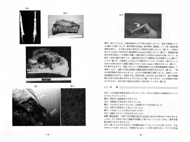 これは1992年に私が出席した骨軟部手術手技研究会の記録。各施設の代表者が自分が手術した患者さんを提示。患者さんのCTやMRIを見て、腫瘍の範囲を確認し、断面図の中に、自分ならどの範囲を切り取るのか意見を述べる。最後に、実際にどのような手術が実施されたのかを提示者から聞いて、その手術が妥当であったのかどうかを話し合う。