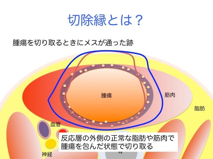 切除縁とは、簡単に言うと医師が腫瘍を切り取るときに使うメスが通った跡。メスが反応層や腫瘍の中を通過すれば、腫瘍をすべて切り取ったとは言えず、体内に残った腫瘍が再び育って、腫瘍が再発する危険性が極めて高くなる。腫瘍を体内から残らず取り除くためには、メスは反応層の外側を通過せねばならない。
