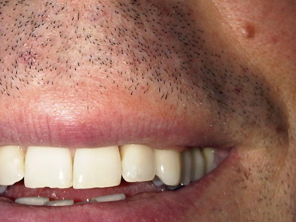 Zahnaufhellung, Zahnarztpraxis Dr. Reinhardt, Fürth