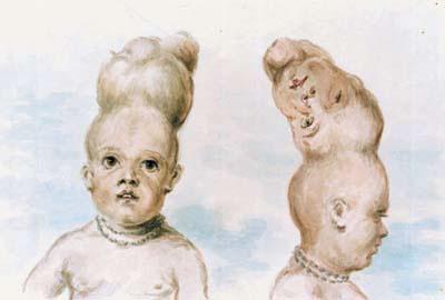 寄生的頭蓋結合双生児を描いたドローイング
