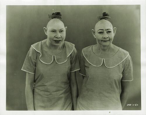 小頭症の人々は「古代文明の生き残り」や「類人猿と人類との中間」という売り文句が付けられた。