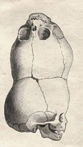 本来あるべき姿の寄生的頭蓋結合双生児の骨格