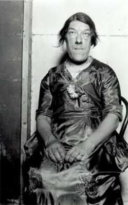 【フリークス解説】メアリー・アン・ビーヴァン「先端巨大症の醜い女性」