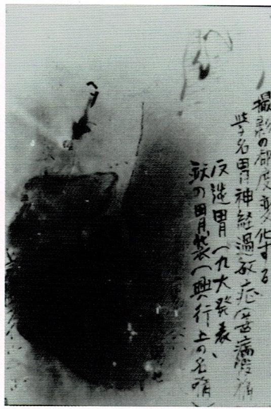 有光伸夫の胃のレントゲン写真。