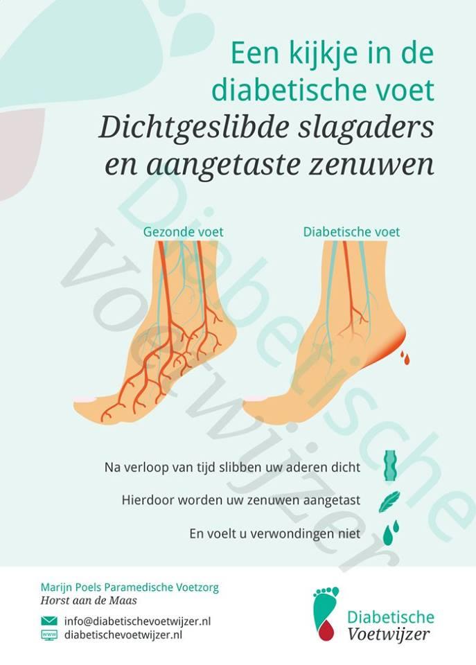Een kijkje in de diabetische voet