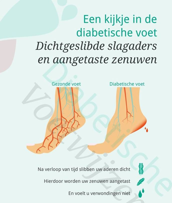 Diabetische voet van binnen
