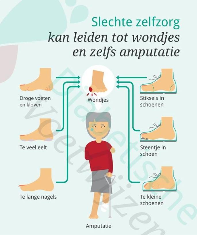 Diabetische voet Zelfzorg