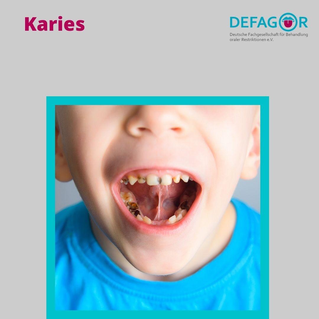 Zungenband und Karies