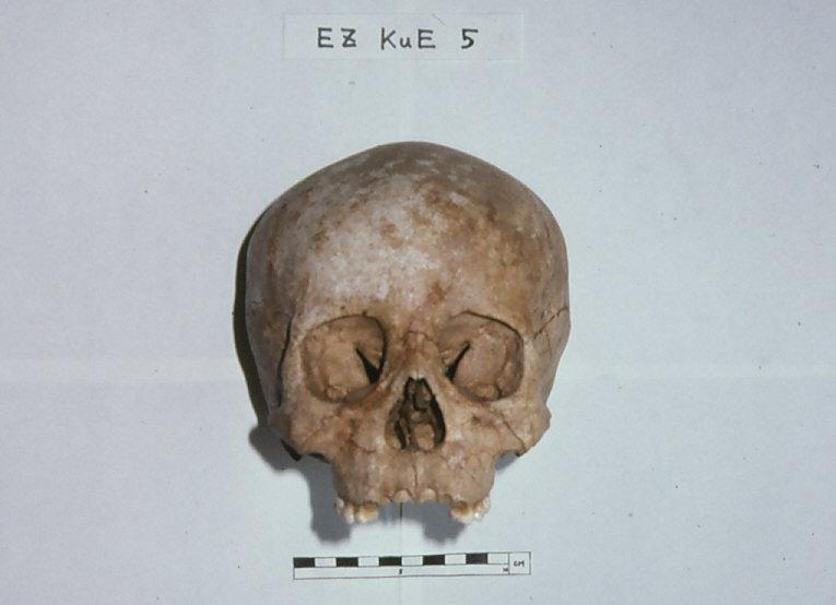 エリザベス・マウンド出土小児人骨頭蓋骨
