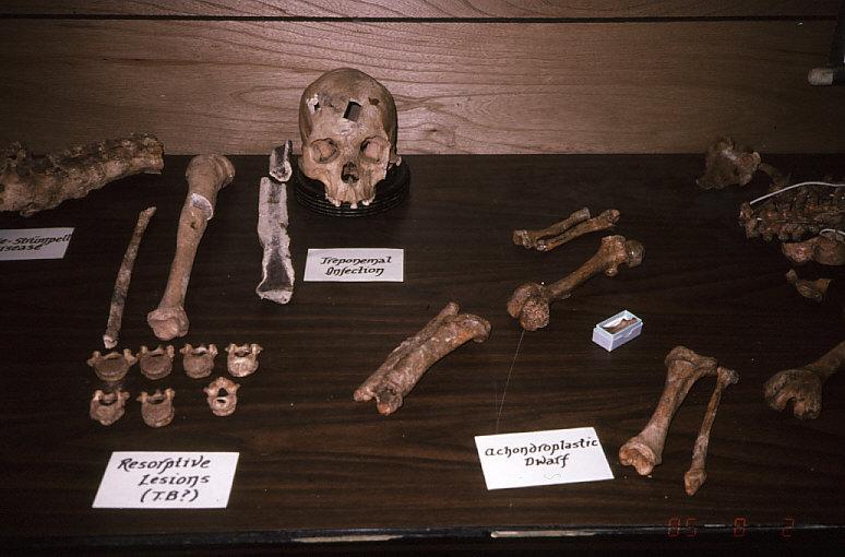 古病理学標本2