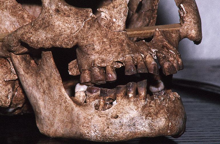 ラッテ・ストーン遺跡出土人骨顔面部近接2:歯がビンロージュで染まっている